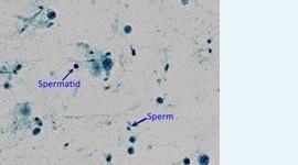 Оплодотворение сперматидами позволяет помочь 30% мужчин