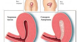 Найдено лечение синдрома Ашермана