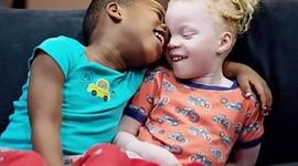 В Канаде женщина родила полосатых близнецов