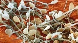 """""""Вкусовые"""" белки влияют на сперматогенез"""