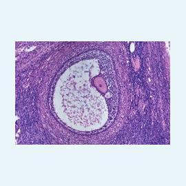 Деформации плодного яйца и аномалии в развитии
