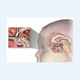 Гипоталамо-гипофизарная недостаточность как причина бесплодия