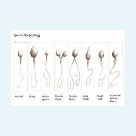 Анализ спермы