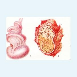Инфаркт яичка