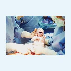 Операция кесарево сечение: что, как и сколько?
