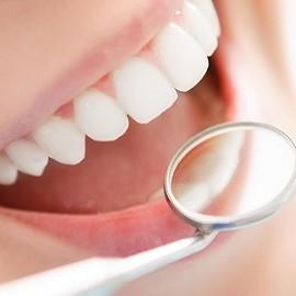 Как отбелить зубы недорого?