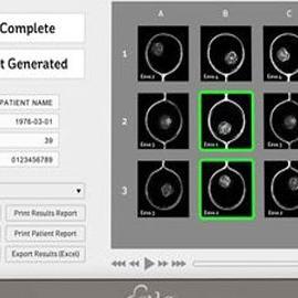 Представлена новая тестовая система Eeva, призванная улучшить результаты ЭКО