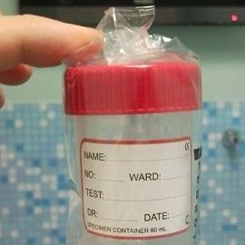 Скандал в Америке - лаборант подменял сперму для ЭКО