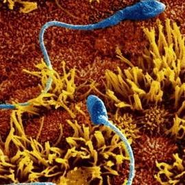 От аллергии на сперму страдают 12% женщин