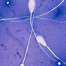 """""""Семейные трусы"""" и качество спермы: что общего?"""