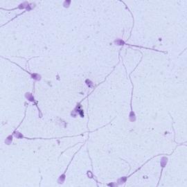 Искусственное оплодотворение поможет при азооспермии