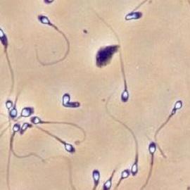 Разработан новый тест для оценки качества спермы