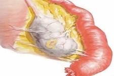 Хронический сальпингит и беременность
