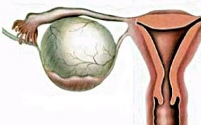 Чем опасно жидкостное образование в яичнике