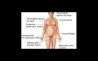 Клайнфелтера синдром
