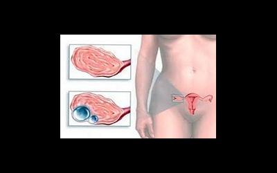 Самые распространённые и опасные заболевания яичников