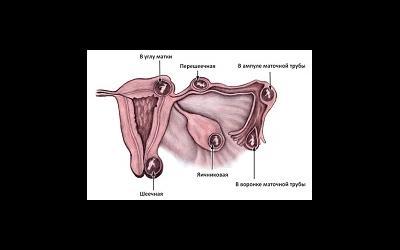 Что скрывается за диагнозом «внематочная беременность»