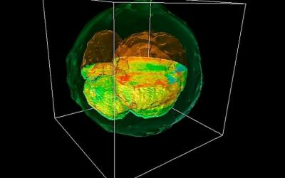 3Д диагностика эмбрионов