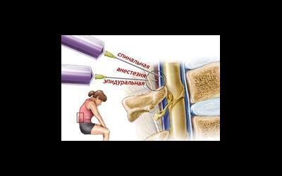 Анестезия при кесаревом сечении