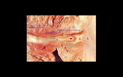 Семенной бугорок и болезни, связанные с ним