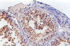 Все, что нужно знать про сперматогенез у мужчин