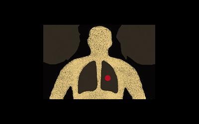 Заболевание туберкулез и борьба с ним