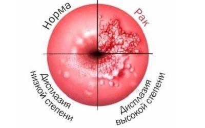 Дисплазия шейки матки | Причины, симптомы, лечение
