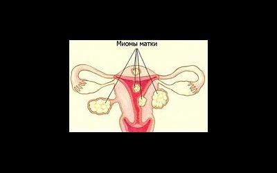 Эффективное лечение миомы матки