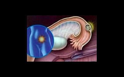 Месячные и внематочная беременность