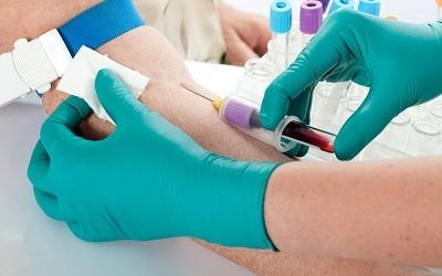 Гемостазиограмма. Информация для пациентов