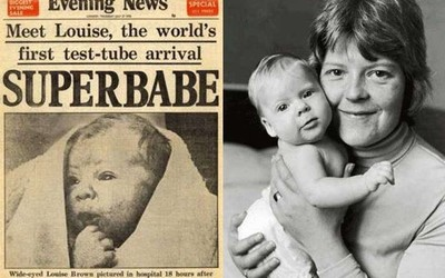 Как это было: история первого ребенка «из пробирки»