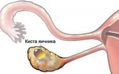 Эхогенное образование в яичнике что это такое