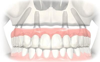 Верните зубы за 1 день по технологии Аll-on-4