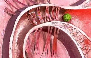 Беременность и непроходимость маточных труб