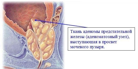 Простата выступает в просвет мочевого пузыря