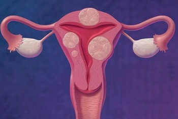 Физические нагрузки при миоме матки